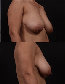 Breast Lift Before Photo by Andrew Trussler, MD FACS; Austin, TX - Case 37136