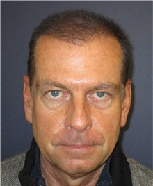 Hair Transplant After Photo by Pramit Malhotra, MD; Ann Arbor, MI - Case 35678