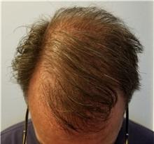 Hair Transplant After Photo by Pramit Malhotra, MD; Ann Arbor, MI - Case 35679