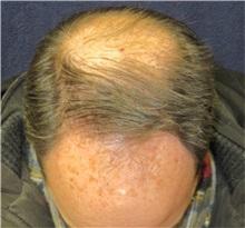 Hair Transplant Before Photo by Pramit Malhotra, MD; Ann Arbor, MI - Case 35679