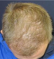 Hair Transplant After Photo by Pramit Malhotra, MD; Ann Arbor, MI - Case 35680