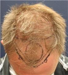 Hair Transplant Before Photo by Pramit Malhotra, MD; Ann Arbor, MI - Case 35680