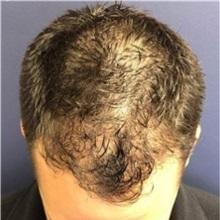 Hair Transplant After Photo by Pramit Malhotra, MD; Ann Arbor, MI - Case 37961