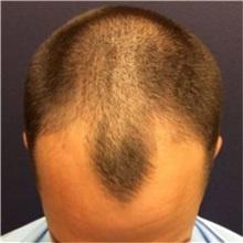 Hair Transplant Before Photo by Pramit Malhotra, MD; Ann Arbor, MI - Case 37961