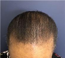 Hair Transplant After Photo by Pramit Malhotra, MD; Ann Arbor, MI - Case 37971