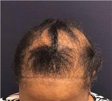 Hair Transplant Before Photo by Pramit Malhotra, MD; Ann Arbor, MI - Case 37971
