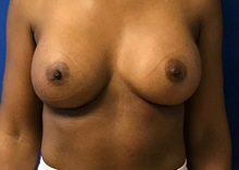 Breast Augmentation After Photo by Timothy Mountcastle, MD; Ashburn, VA - Case 29986