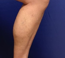 Vascular Malformations After Photo by Timothy Mountcastle, MD; Ashburn, VA - Case 29988