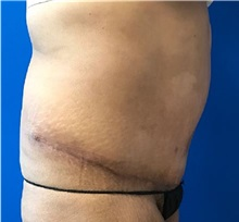 Tummy Tuck After Photo by Timothy Mountcastle, MD; Ashburn, VA - Case 29989