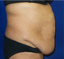 Tummy Tuck Before Photo by Timothy Mountcastle, MD; Ashburn, VA - Case 29989