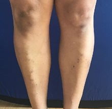 Vascular Malformations After Photo by Timothy Mountcastle, MD; Ashburn, VA - Case 29990