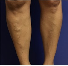 Vascular Malformations Before Photo by Timothy Mountcastle, MD; Ashburn, VA - Case 29990