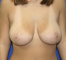 Breast Reduction After Photo by Timothy Mountcastle, MD; Ashburn, VA - Case 29991