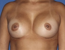 Breast Augmentation After Photo by Timothy Mountcastle, MD; Ashburn, VA - Case 29992