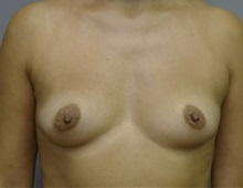 Breast Augmentation Before Photo by Timothy Mountcastle, MD; Ashburn, VA - Case 29992