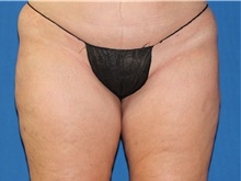 Liposuction After Photo by Timothy Mountcastle, MD; Ashburn, VA - Case 29993