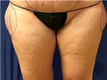 Liposuction Before Photo by Timothy Mountcastle, MD; Ashburn, VA - Case 29993