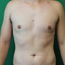 Male Breast Reduction After Photo by Timothy Mountcastle, MD; Ashburn, VA - Case 29995