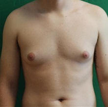 Male Breast Reduction Before Photo by Timothy Mountcastle, MD; Ashburn, VA - Case 29995