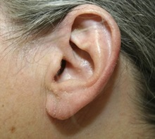 Ear Surgery After Photo by Timothy Mountcastle, MD; Ashburn, VA - Case 29997