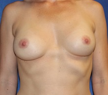 Breast Augmentation After Photo by Timothy Mountcastle, MD; Ashburn, VA - Case 30005