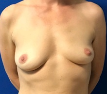 Breast Augmentation Before Photo by Timothy Mountcastle, MD; Ashburn, VA - Case 30005
