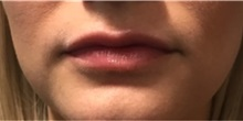 Dermal Fillers After Photo by Timothy Mountcastle, MD; Ashburn, VA - Case 30006