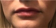 Dermal Fillers After Photo by Timothy Mountcastle, MD; Ashburn, VA - Case 30006