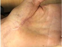 Hand Surgery After Photo by Timothy Mountcastle, MD; Ashburn, VA - Case 30007
