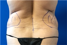 Liposuction Before Photo by Timothy Mountcastle, MD; Ashburn, VA - Case 30101