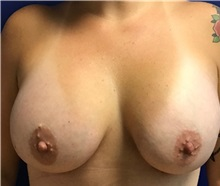 Breast Augmentation After Photo by Timothy Mountcastle, MD; Ashburn, VA - Case 30176