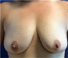 Breast Augmentation Before Photo by Timothy Mountcastle, MD; Ashburn, VA - Case 30176
