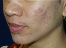 Chemical Peels, IPL, Fractional CO2 Laser Treatments After Photo by Timothy Mountcastle, MD; Ashburn, VA - Case 30480