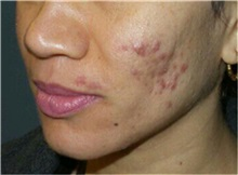 Chemical Peels, IPL, Fractional CO2 Laser Treatments Before Photo by Timothy Mountcastle, MD; Ashburn, VA - Case 30480