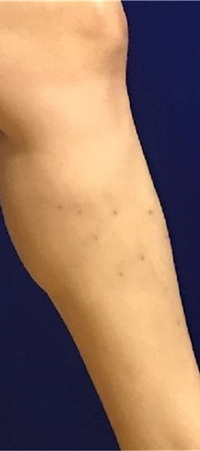 Vascular Malformations After Photo by Timothy Mountcastle, MD; Ashburn, VA - Case 30537
