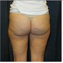 Body Contouring Before Photo by Timothy Mountcastle, MD; Ashburn, VA - Case 30538