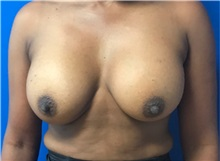 Breast Augmentation After Photo by Timothy Mountcastle, MD; Ashburn, VA - Case 30617