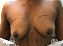 Breast Augmentation Before Photo by Timothy Mountcastle, MD; Ashburn, VA - Case 30617