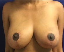 Breast Lift After Photo by Timothy Mountcastle, MD; Ashburn, VA - Case 30665