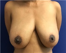 Breast Lift Before Photo by Timothy Mountcastle, MD; Ashburn, VA - Case 30665