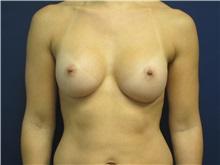 Breast Augmentation After Photo by Tommaso Addona, MD; Garden City, NY - Case 30386