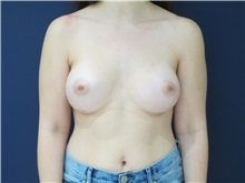 Breast augmentation wife
