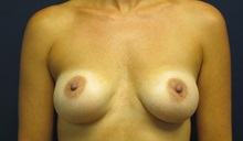Breast Augmentation After Photo by Tommaso Addona, MD; Garden City, NY - Case 34970
