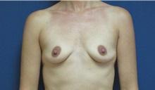 Breast Augmentation Before Photo by Tommaso Addona, MD; Garden City, NY - Case 34970