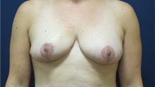 Breast Reduction After Photo by Tommaso Addona, MD; Garden City, NY - Case 34980