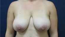 Breast Reduction Before Photo by Tommaso Addona, MD; Garden City, NY - Case 34980