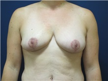 Breast Reduction After Photo by Tommaso Addona, MD; Garden City, NY - Case 36702
