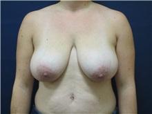 Breast Reduction Before Photo by Tommaso Addona, MD; Garden City, NY - Case 36702