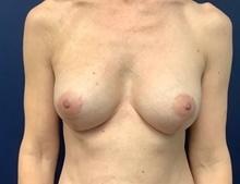 Breast Reconstruction After Photo by Tommaso Addona, MD; Garden City, NY - Case 40819