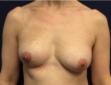 Breast Reconstruction Before Photo by Tommaso Addona, MD; Garden City, NY - Case 40819